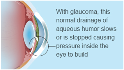 Glaucoma Drainage Colorado Springs