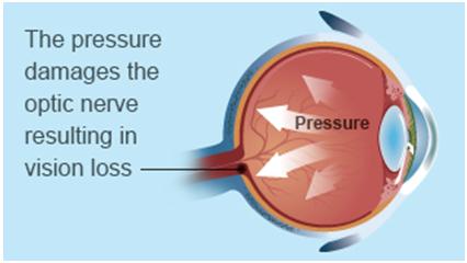 Glaucoma Pressure Colorado Springs